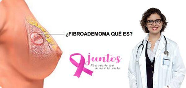 Fibroadenoma de mama que es