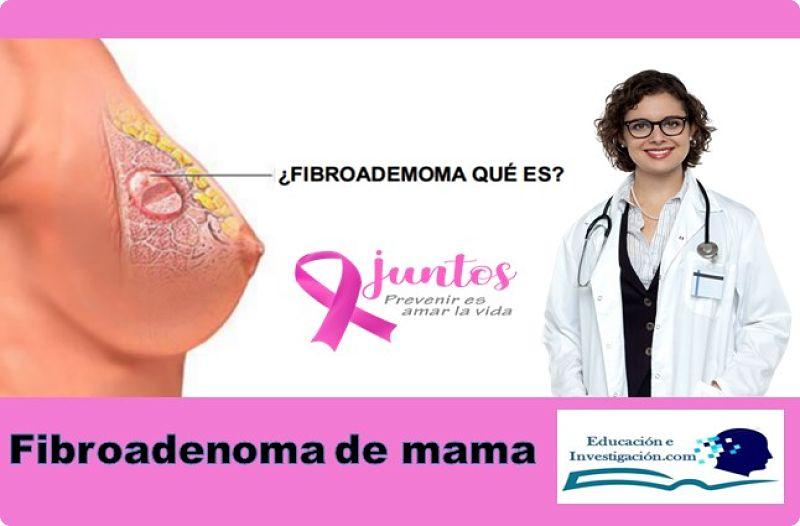 Fibroadenoma de mama