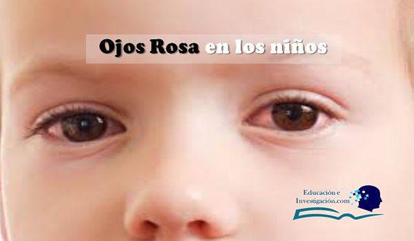 Ojos Rosa en los niños